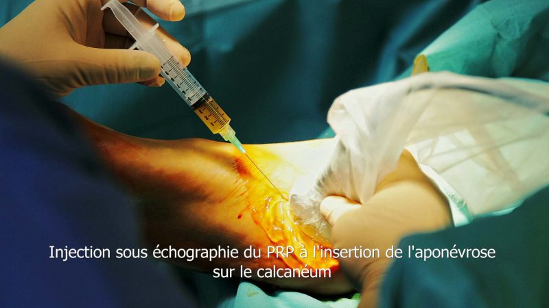 Réalisation de film médical - Paris